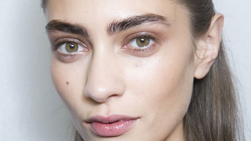 What Causes Under-Eye Bags