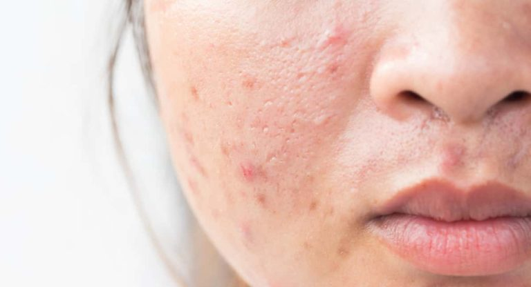 How to Get Rid of Acne Scars on the Face